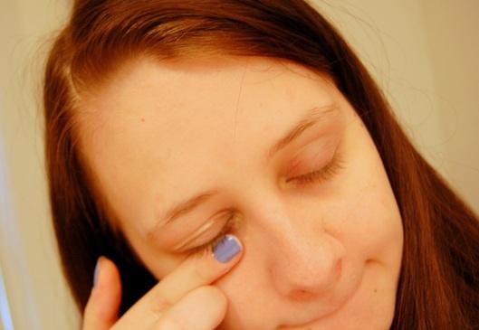 irritation ved øjnene