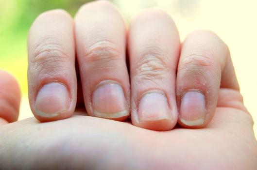 Neglerødder og neglebånd